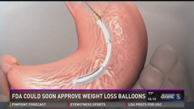 Fda Could Soon Approve Weight Loss Balloons