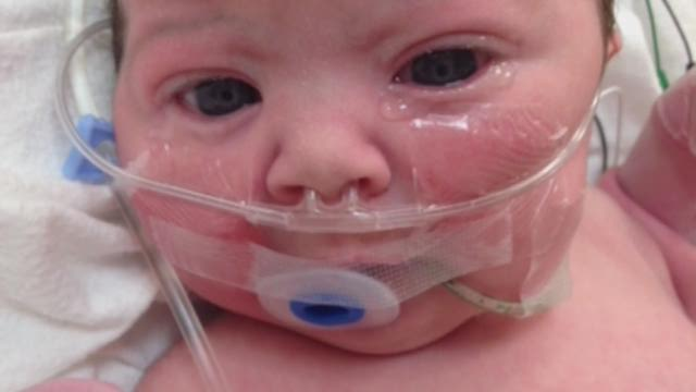 New procedure gives child a new lease on life